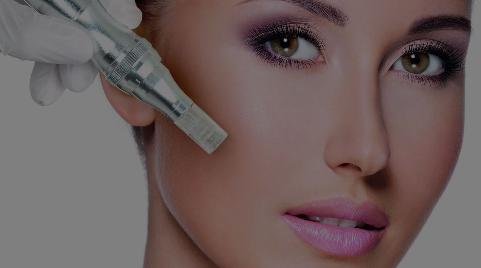 Skin correction micro needling scar removal gold coast